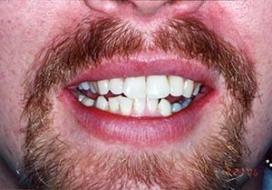 Fix Missing Tooth - Dental Crowns