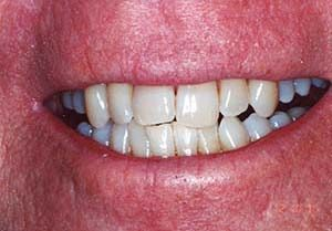 Dental Whitening Clinic - Professional teeth whitening