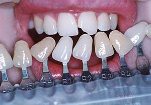 Fix Fracture tooth with Veneer - Emergency Dental Services