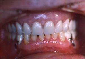 Dental Services - Veneer or Crowns